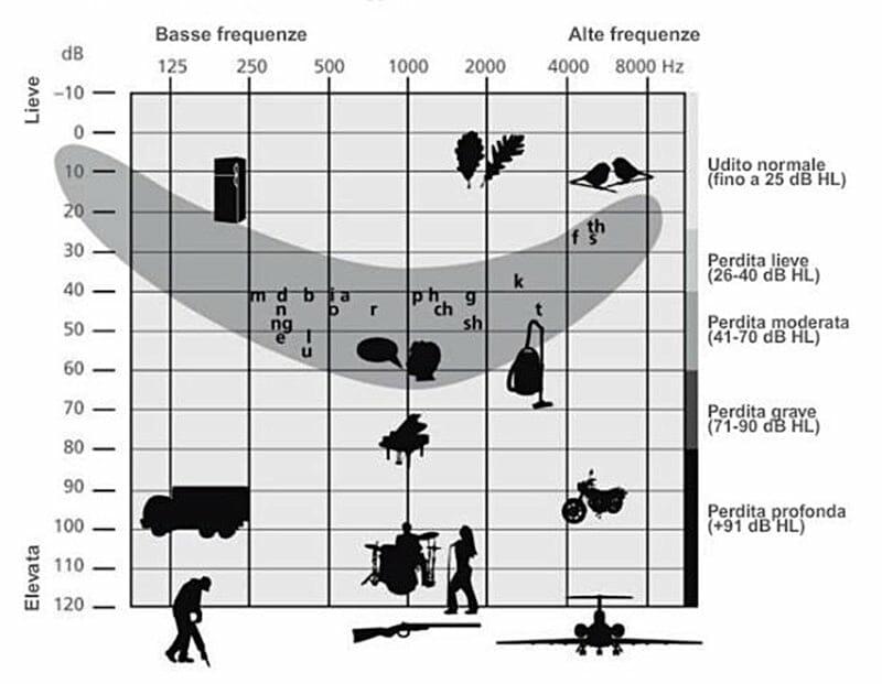 Audiogramma che si ottiene con una visita acustica.